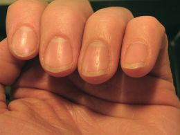Health information on your fingertips