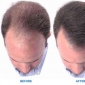 Solution to the Hair Loss