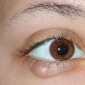 Surgery: An ideal treatment for chalazion.