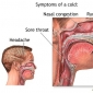 Symptoms & care of cough & sore throat