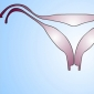 Uterus Thickening