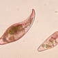 What are protozoa?